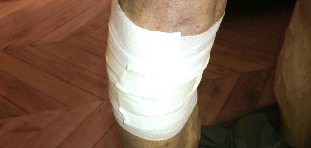 Bandage chute de vélo