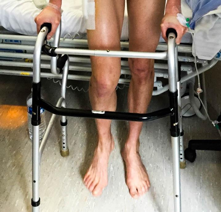 Marche après fracture