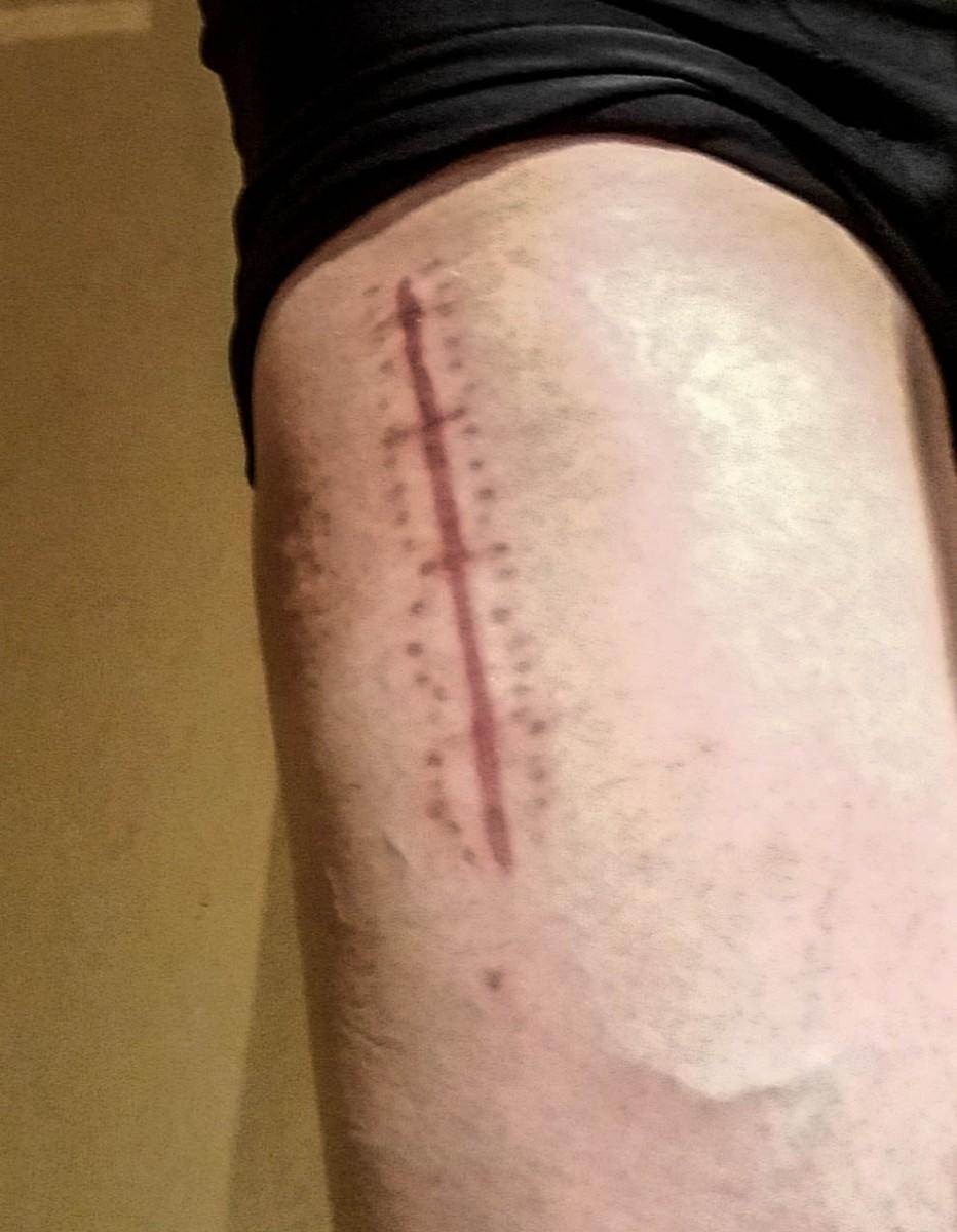 Cicatrice sur la cuisse